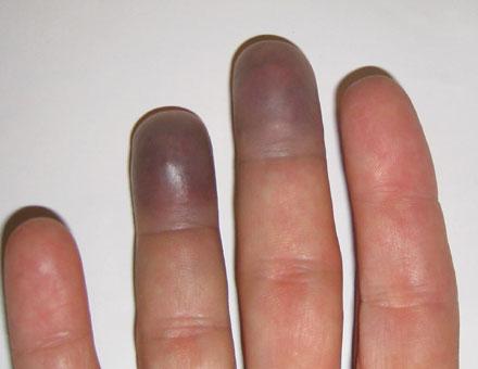 Bruised Ring Finger